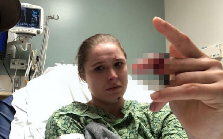 """Ronda Rousey nearly severed a finger while filming the third season of the FOX drama """"9-1-1"""""""